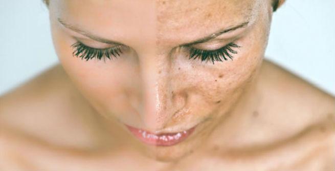 ciri-ciri kulit yang tidak cocok menggunakan cream HN