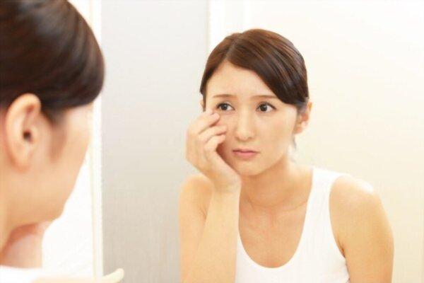 5 Efek Samping Produk Acnes yang Berbahaya jika Diabaikan