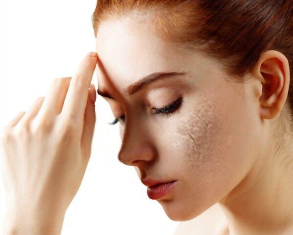 Efek Samping Produk Acnes
